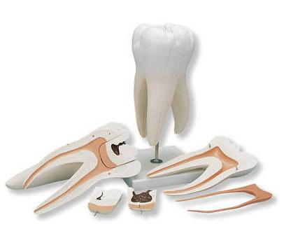 коренной зуб фото