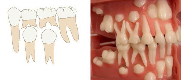 Как прорезываются постоянные зубы
