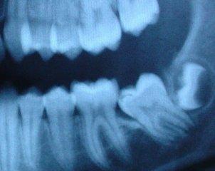 Может ли вырасти зуб мудрости у ребенка